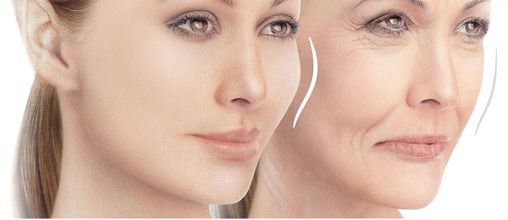Facial-contouring